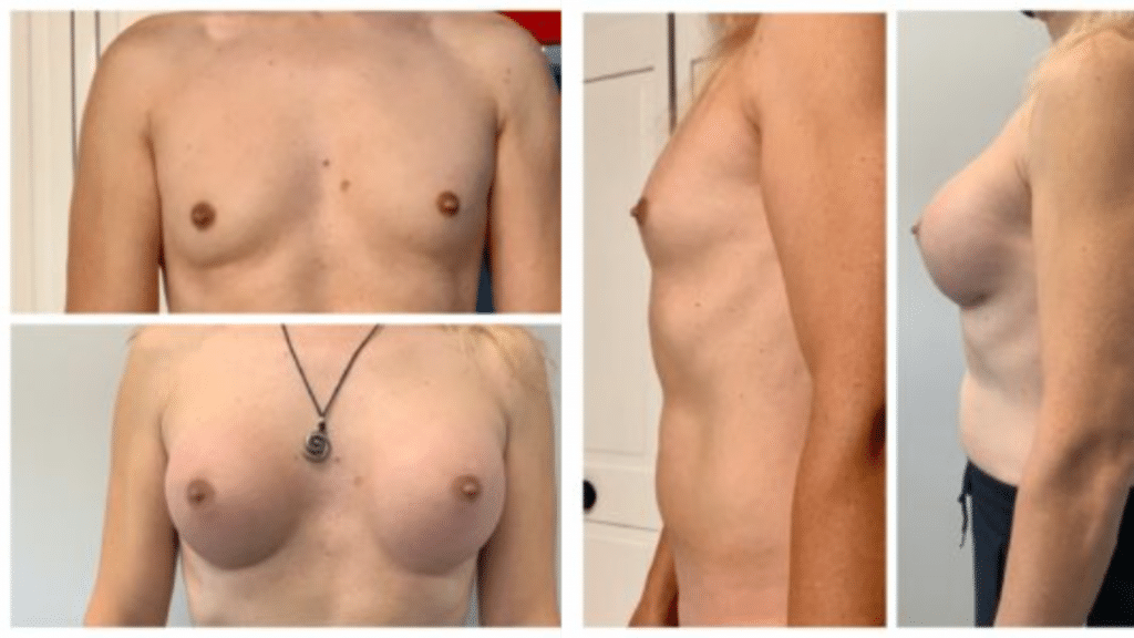 Male to Female Procedures