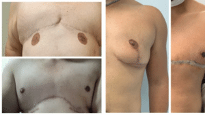 female to male procedures