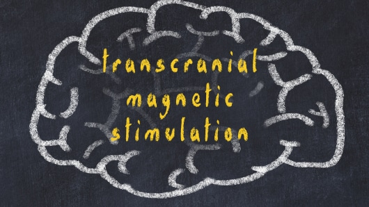 Transcranial Magnetic Stimulation or TMS